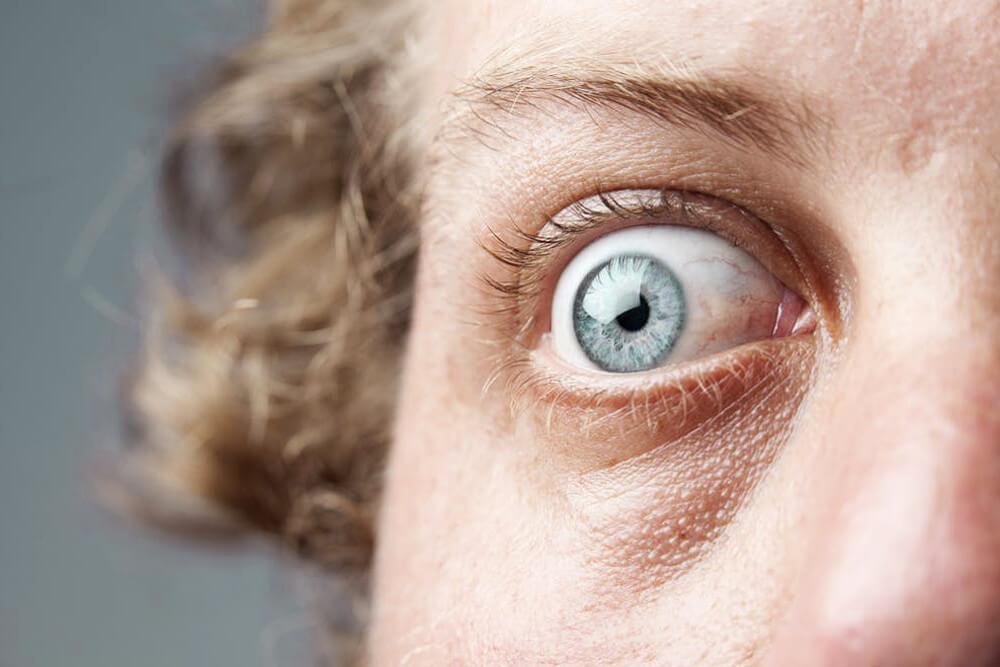 Methatesiophobie: Die Angst vor dem Erfolg